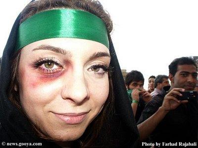 black eye woman